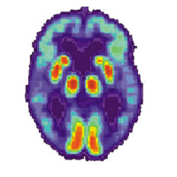 Brain with Alzheimer's diseas